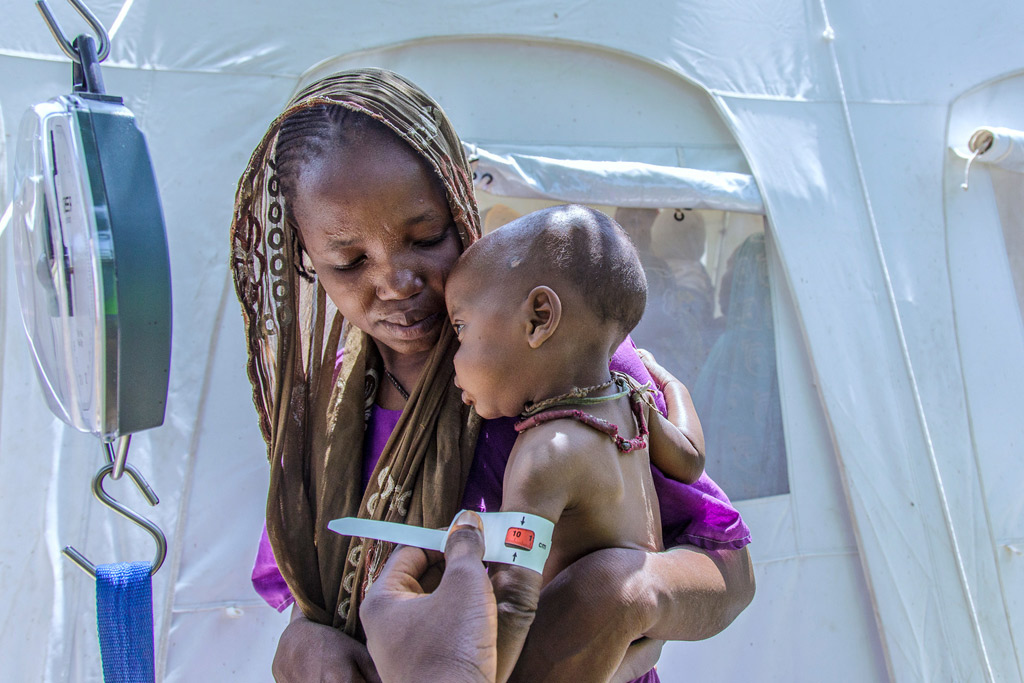 An 11-month-old child having his arm cirmeasured at a health centre at the Banki IDP camp in Borno state, northeast Nigeria. Photo: UNICEF/Esiebo